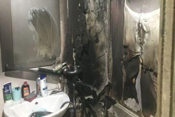 Череповчанина госпитализировали с ожогами лица и шеи в медсанчасть «Северсталь»